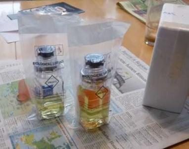 Die A- und B-Probe meiner ersten Dopingkontrolle im Jahr 2010